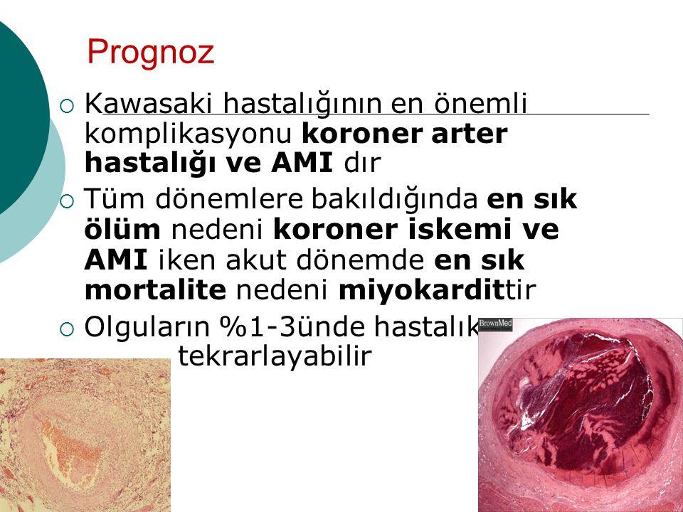 Prognoz Kawasaki hastalığının en önemli komplikasyonu koroner arter hastalığı ve AMI dır.