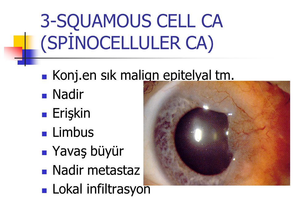 3-SQUAMOUS CELL CA (SPİNOCELLULER CA)