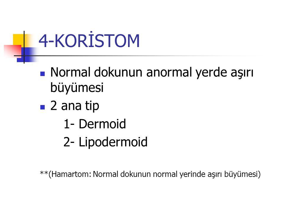 4-KORİSTOM Normal dokunun anormal yerde aşırı büyümesi 2 ana tip