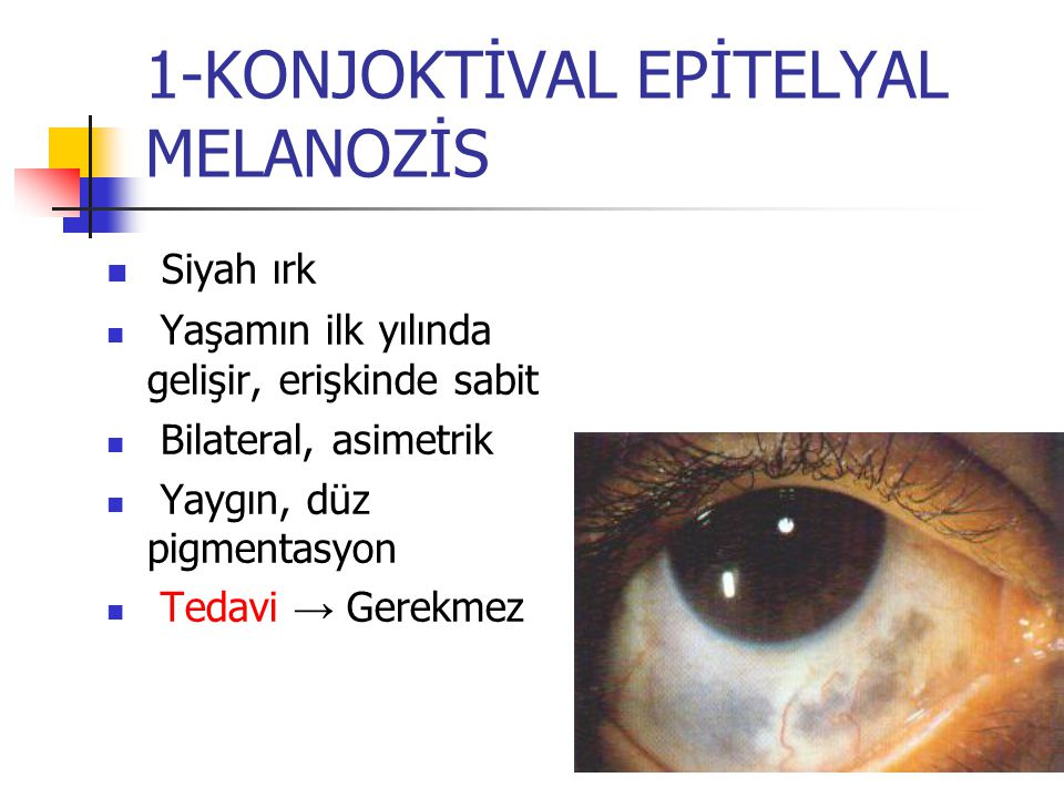1-KONJOKTİVAL EPİTELYAL MELANOZİS