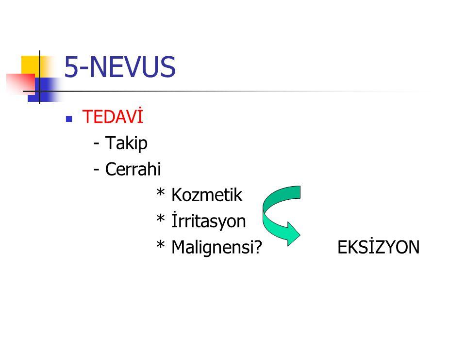 5-NEVUS TEDAVİ - Takip - Cerrahi * Kozmetik * İrritasyon