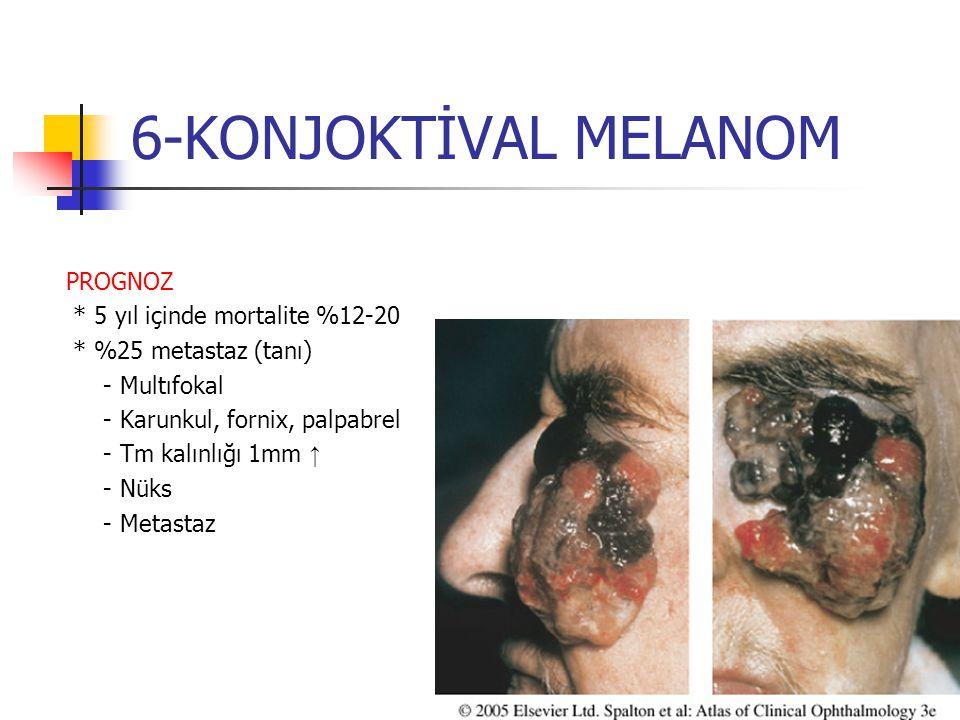 6-KONJOKTİVAL MELANOM PROGNOZ * 5 yıl içinde mortalite %12-20