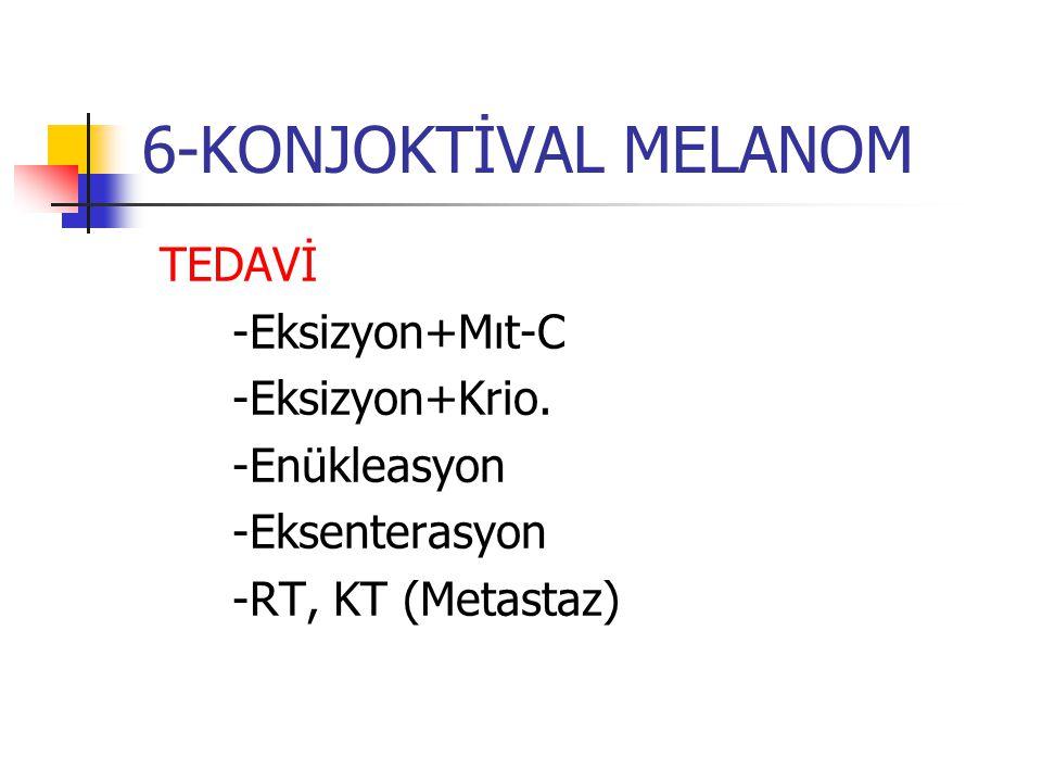 6-KONJOKTİVAL MELANOM TEDAVİ -Eksizyon+Mıt-C -Eksizyon+Krio.