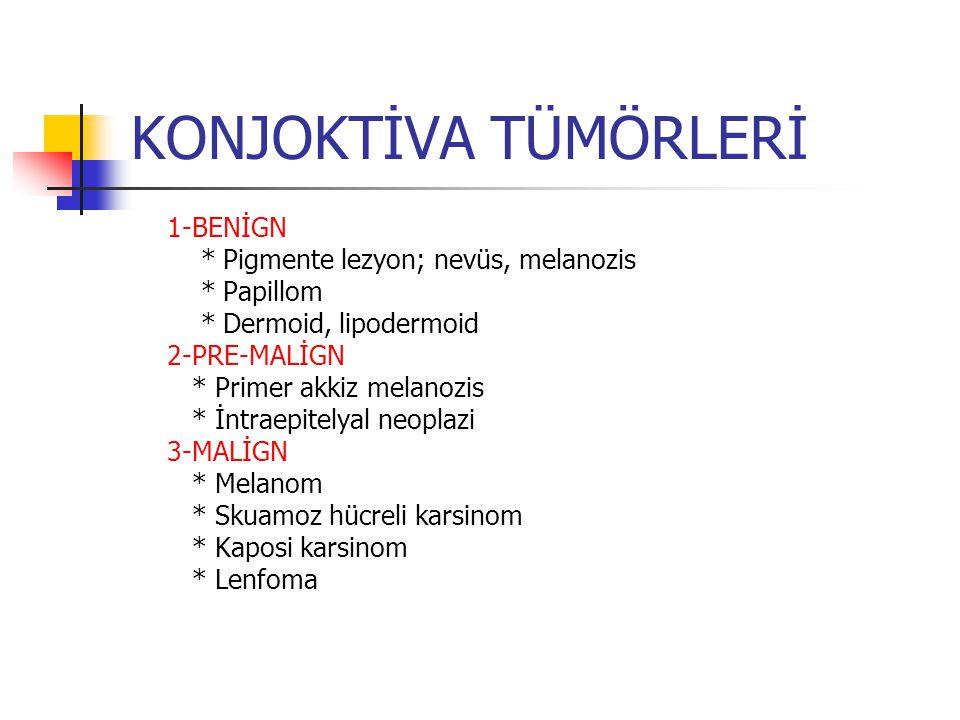 KONJOKTİVA TÜMÖRLERİ 1-BENİGN * Pigmente lezyon; nevüs, melanozis