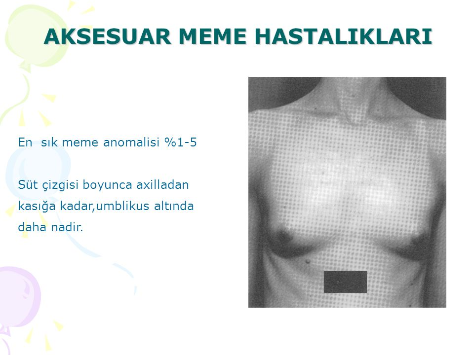 AKSESUAR MEME HASTALIKLARI