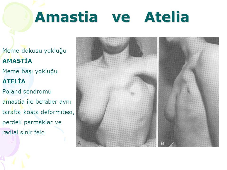 Amastia ve Atelia Meme dokusu yokluğu AMASTİA Meme başı yokluğu ATELİA