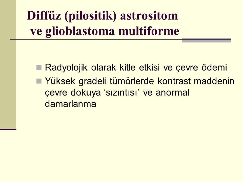 Diffüz (pilositik) astrositom ve glioblastoma multiforme