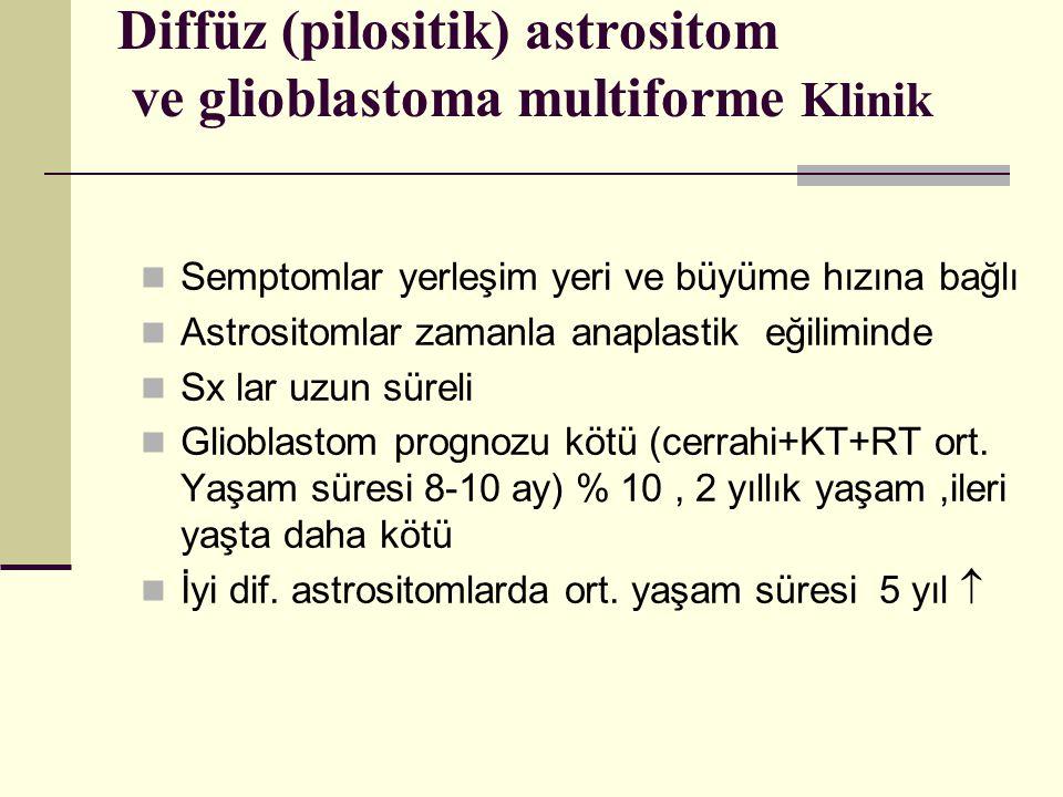 Diffüz (pilositik) astrositom ve glioblastoma multiforme Klinik