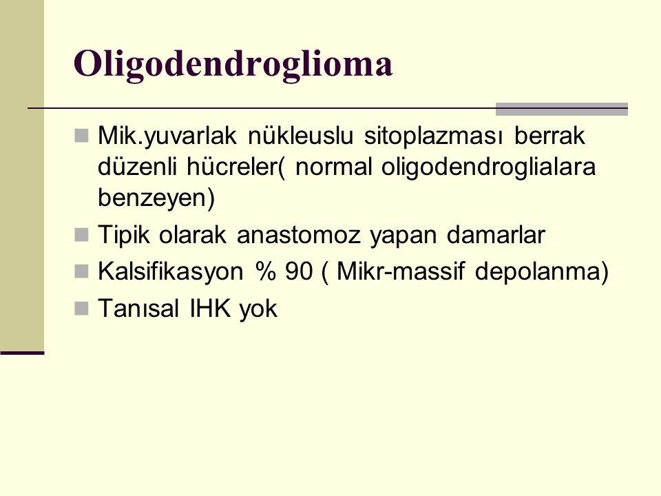 Oligodendroglioma Mik.yuvarlak nükleuslu sitoplazması berrak düzenli hücreler( normal oligodendroglialara benzeyen)