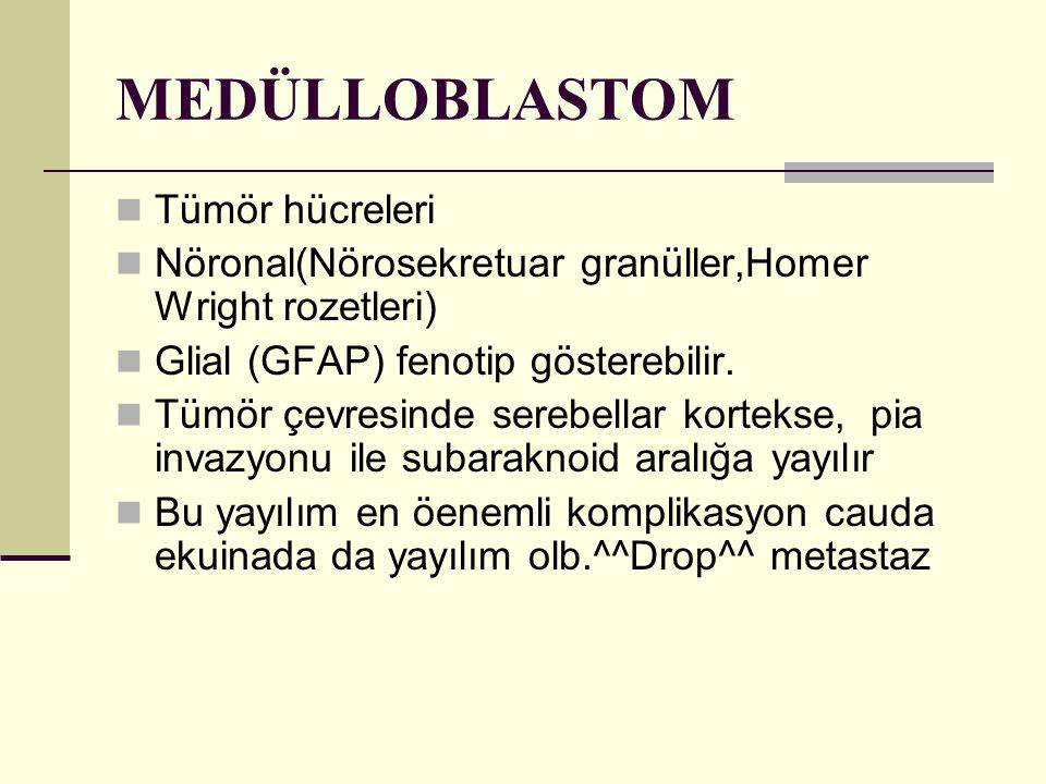 MEDÜLLOBLASTOM Tümör hücreleri