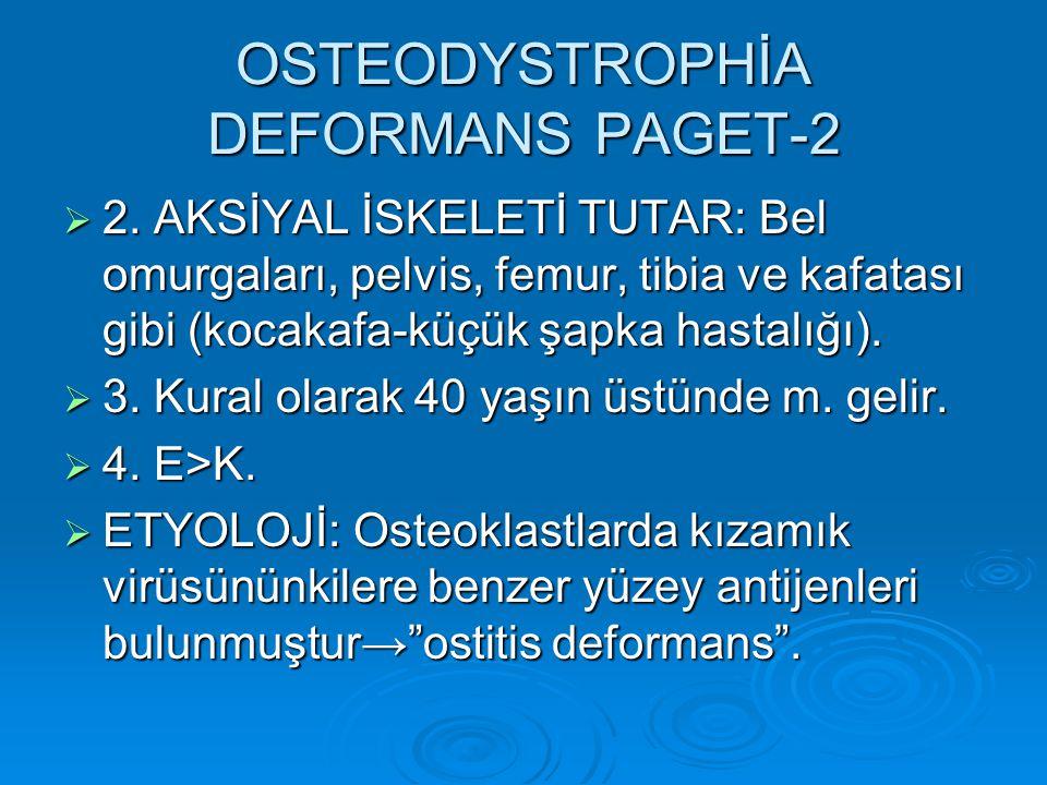OSTEODYSTROPHİA DEFORMANS PAGET-2