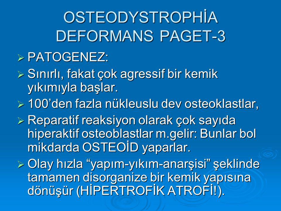 OSTEODYSTROPHİA DEFORMANS PAGET-3