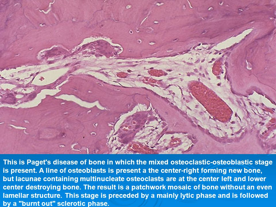 This is Paget s disease of bone in which the mixed osteoclastic-osteoblastic stage is present.