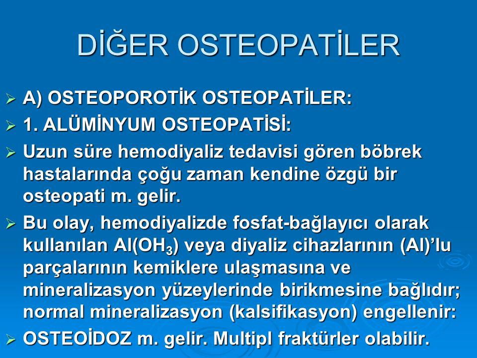 DİĞER OSTEOPATİLER A) OSTEOPOROTİK OSTEOPATİLER: