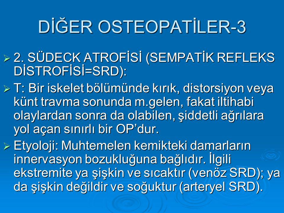 DİĞER OSTEOPATİLER-3 2. SÜDECK ATROFİSİ (SEMPATİK REFLEKS DİSTROFİSİ=SRD):