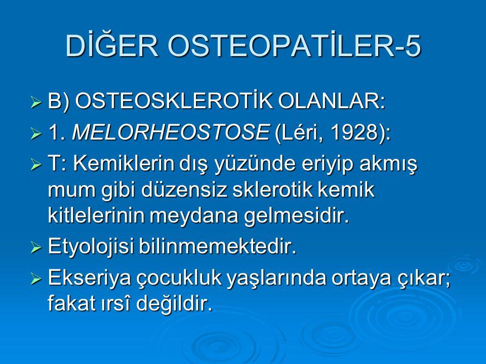 DİĞER OSTEOPATİLER-5 B) OSTEOSKLEROTİK OLANLAR:
