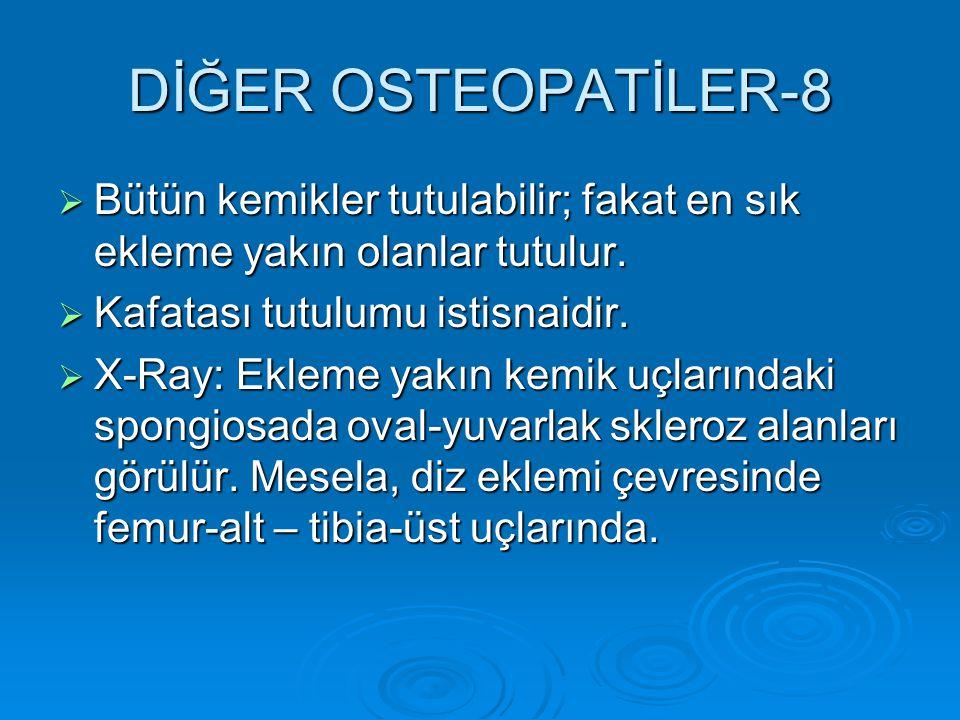 DİĞER OSTEOPATİLER-8 Bütün kemikler tutulabilir; fakat en sık ekleme yakın olanlar tutulur. Kafatası tutulumu istisnaidir.