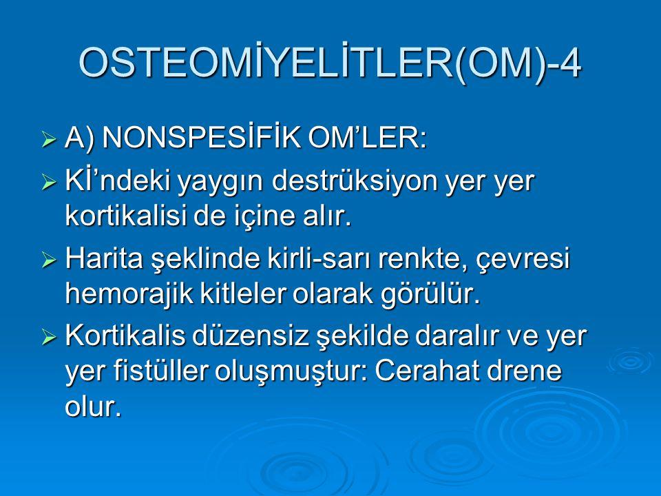 OSTEOMİYELİTLER(OM)-4