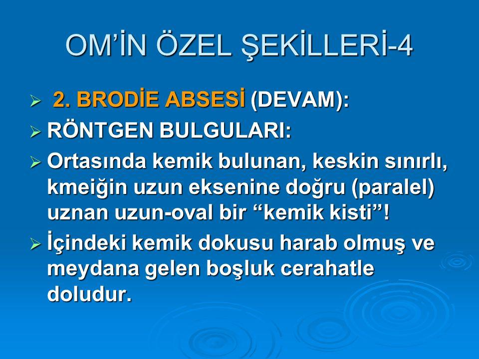 OM'İN ÖZEL ŞEKİLLERİ-4 2. BRODİE ABSESİ (DEVAM): RÖNTGEN BULGULARI: