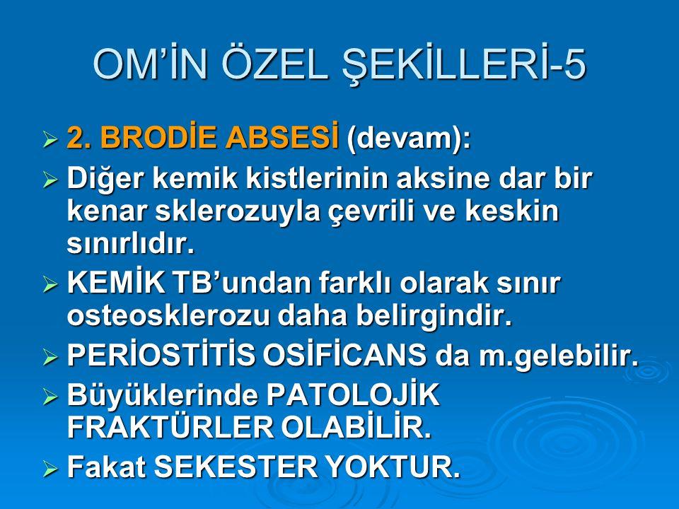 OM'İN ÖZEL ŞEKİLLERİ-5 2. BRODİE ABSESİ (devam):