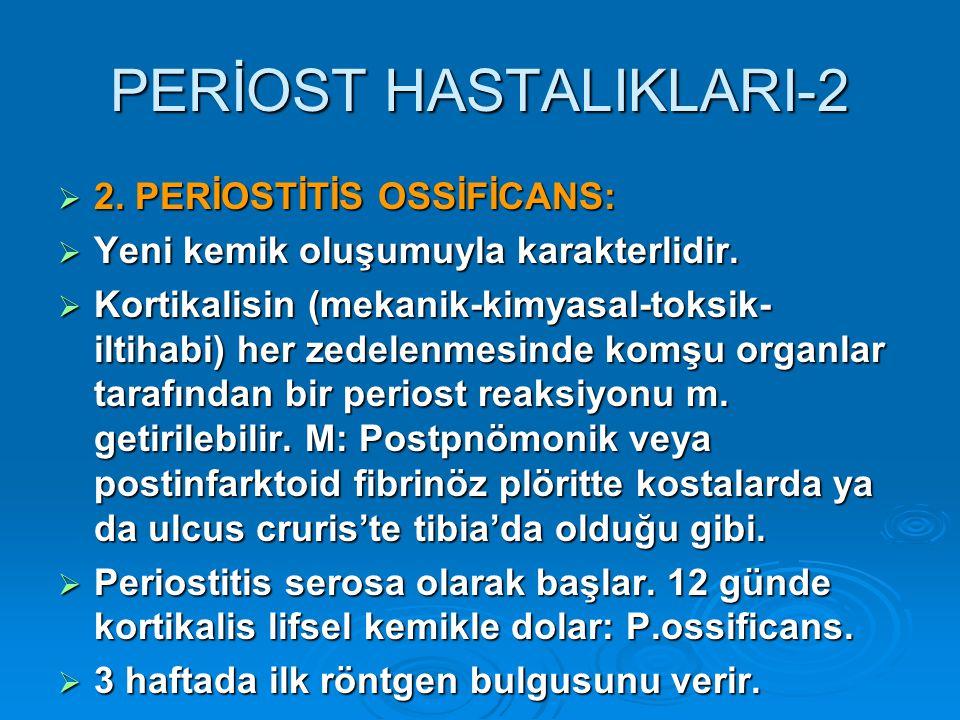 PERİOST HASTALIKLARI-2