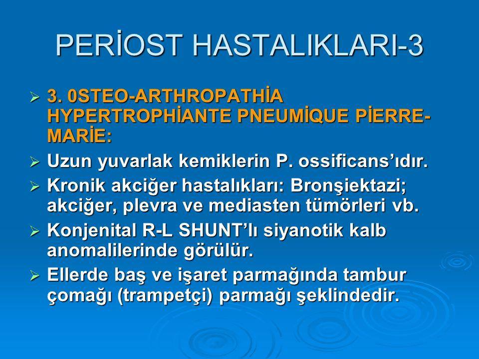 PERİOST HASTALIKLARI-3