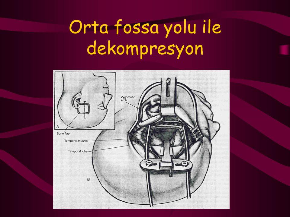 Orta fossa yolu ile dekompresyon