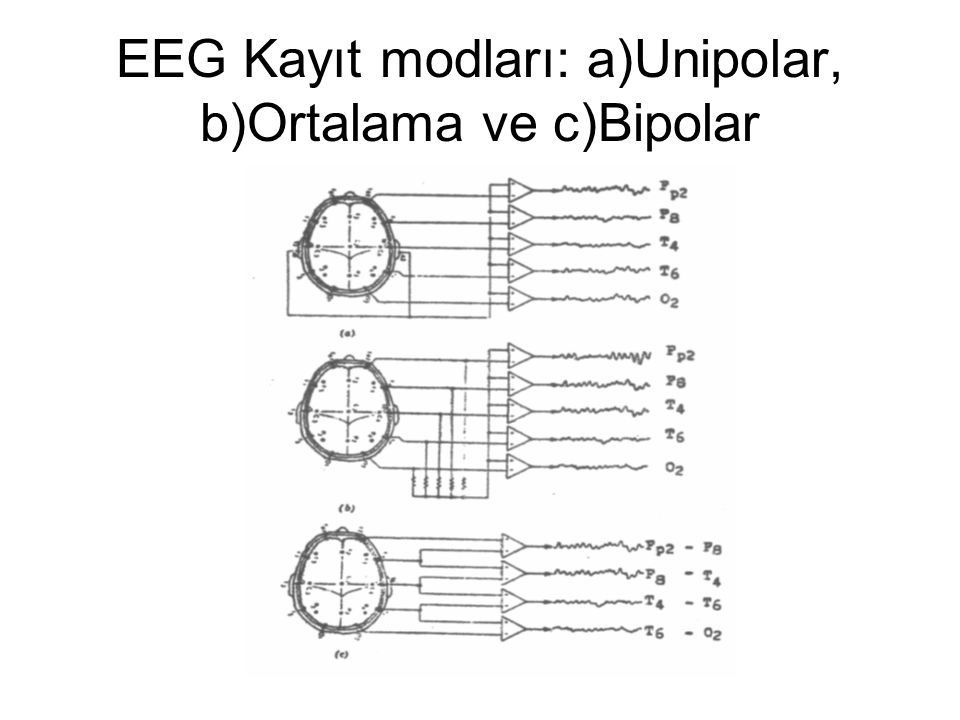 EEG Kayıt modları: a)Unipolar, b)Ortalama ve c)Bipolar