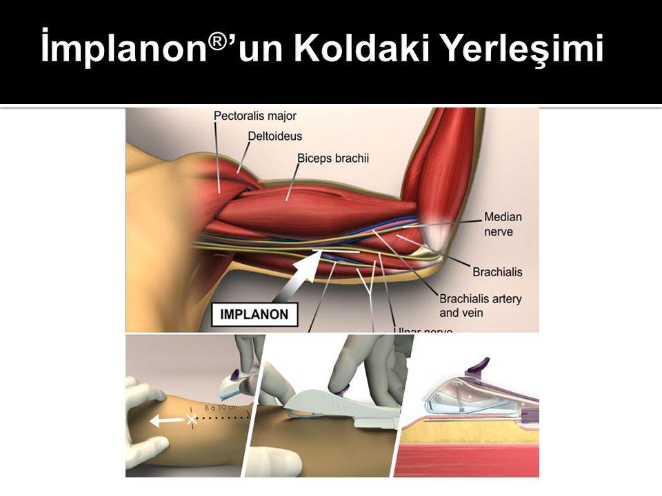 İmplanon®'un Koldaki Yerleşimi