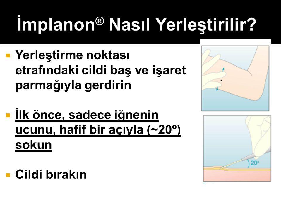 İmplanon® Nasıl Yerleştirilir