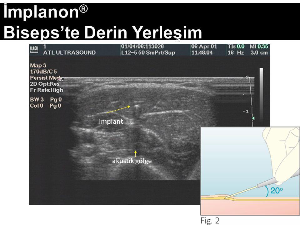 İmplanon® Biseps'te Derin Yerleşim