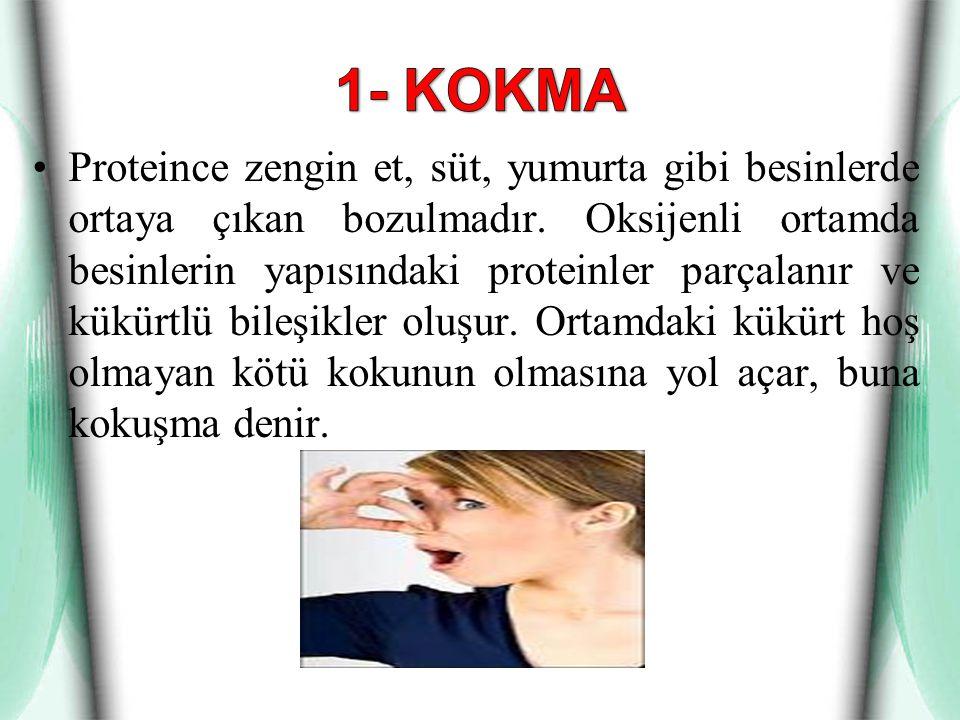 1- KOKMA