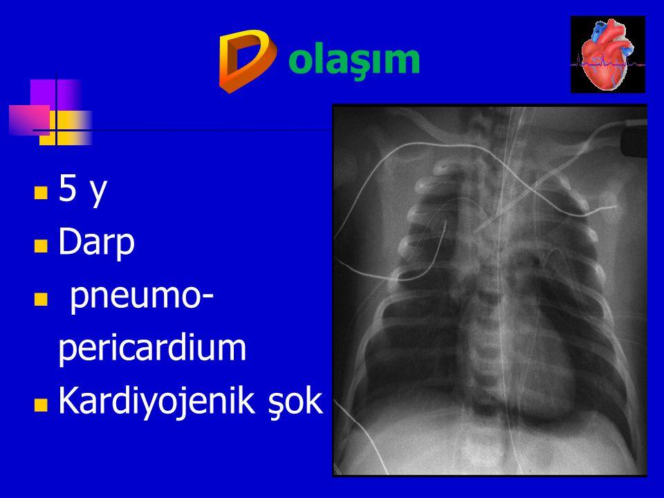olaşım D 5 y Darp pneumo- pericardium Kardiyojenik şok