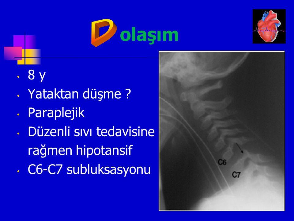 olaşım D 8 y Yataktan düşme Paraplejik Düzenli sıvı tedavisine
