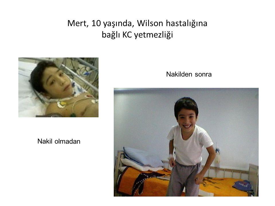 Mert, 10 yaşında, Wilson hastalığına bağlı KC yetmezliği