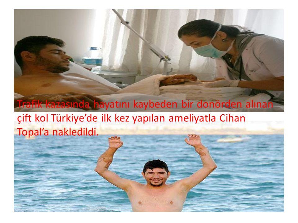 Trafik kazasında hayatını kaybeden bir donörden alınan çift kol Türkiye'de ilk kez yapılan ameliyatla Cihan Topal'a nakledildi.