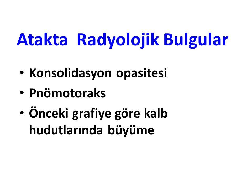 Atakta Radyolojik Bulgular