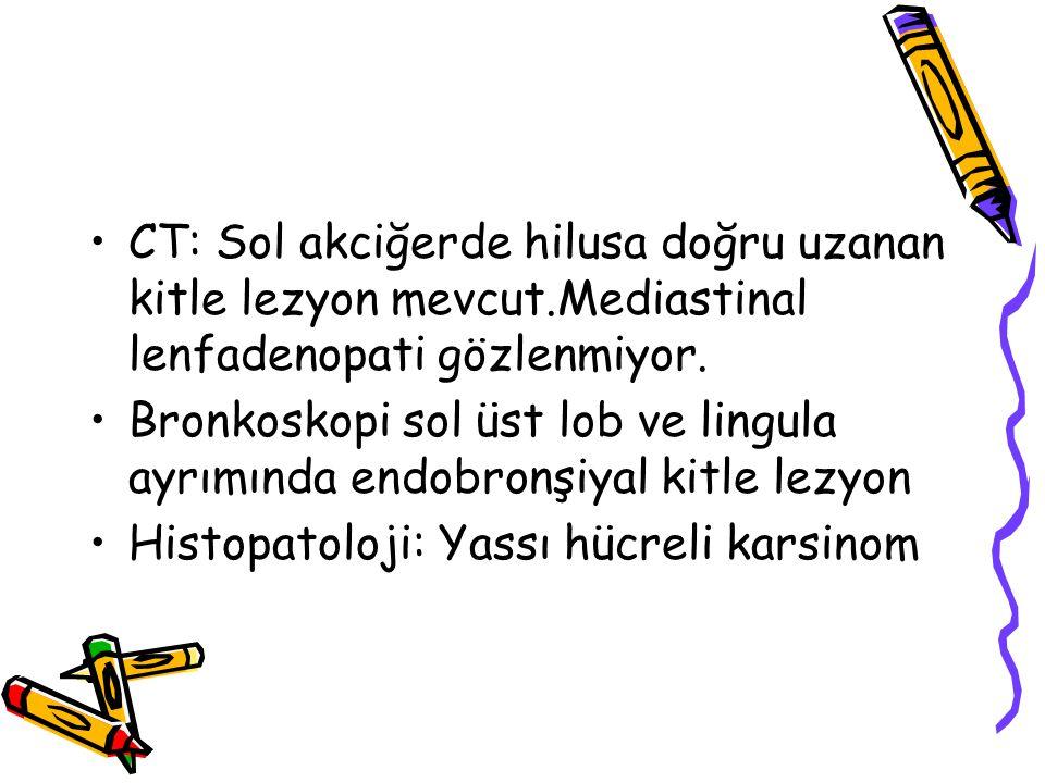 CT: Sol akciğerde hilusa doğru uzanan kitle lezyon mevcut