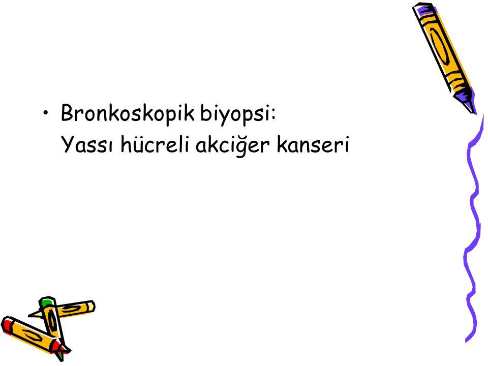 Bronkoskopik biyopsi: