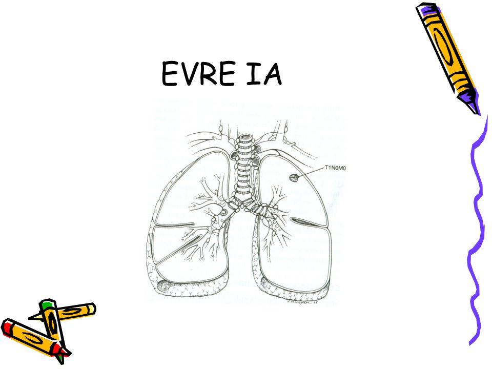 EVRE IA