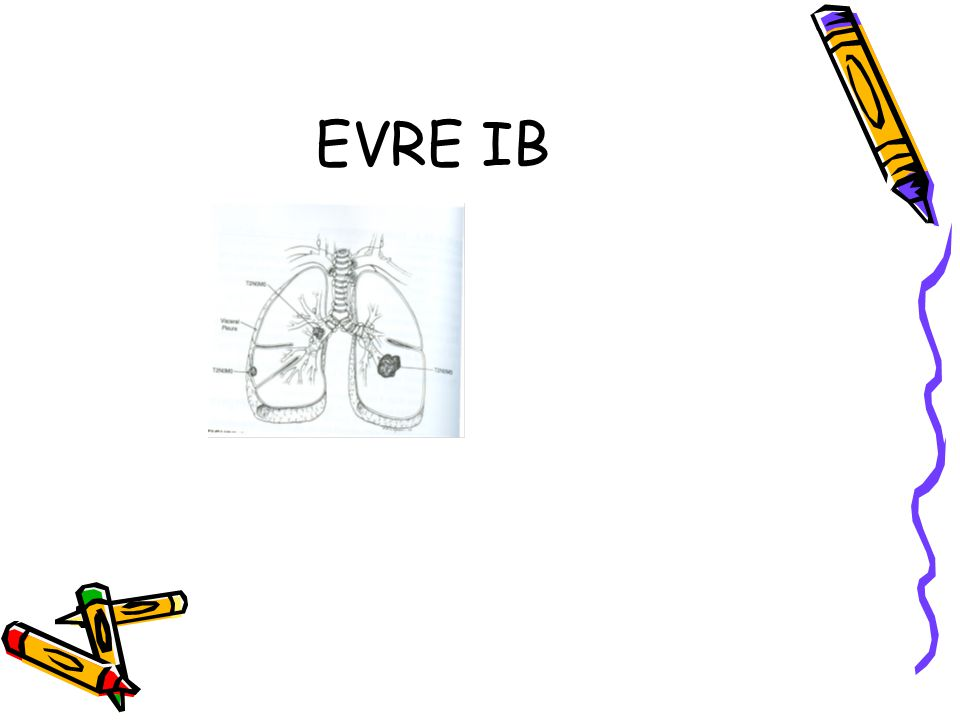 EVRE IB