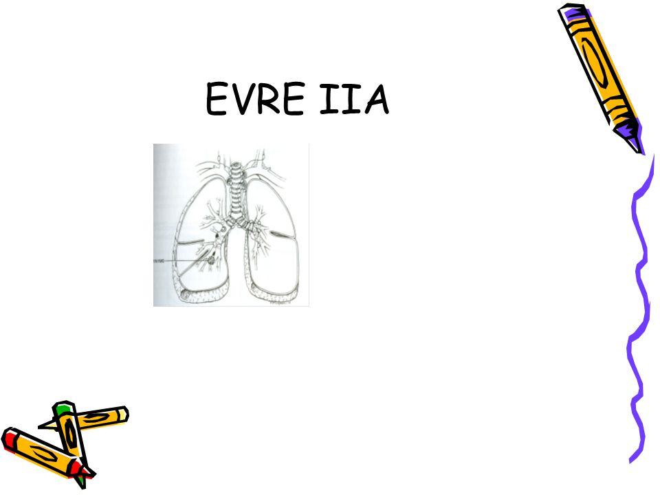 EVRE IIA