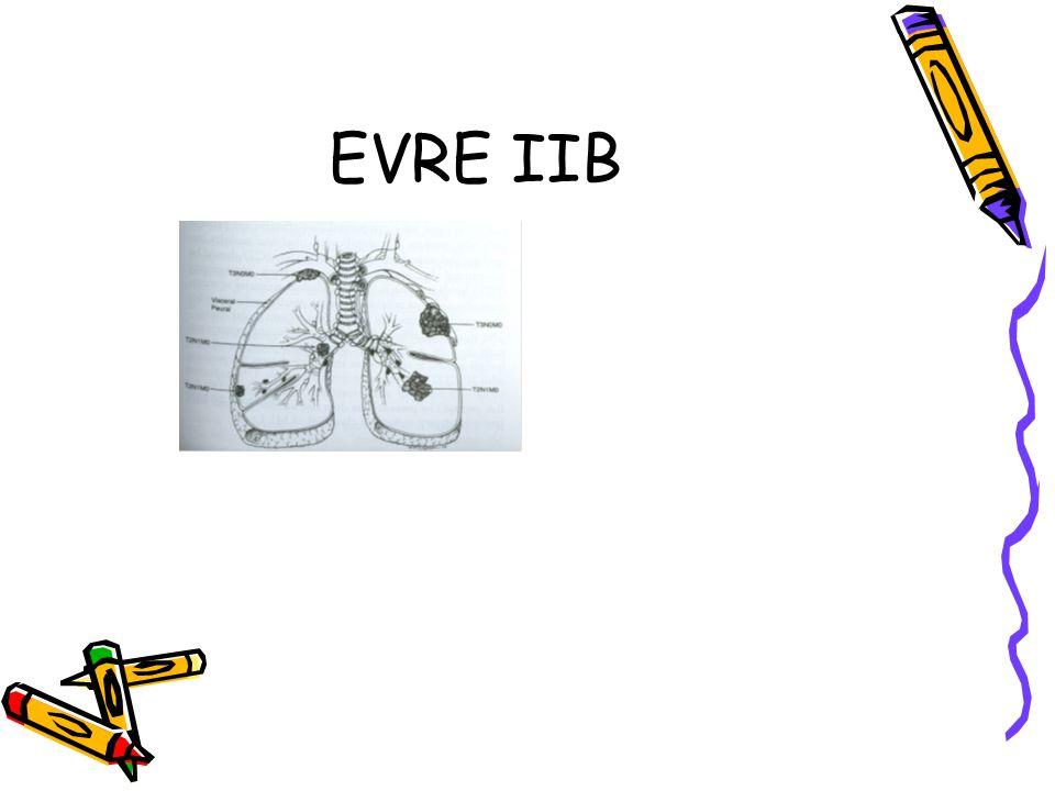 EVRE IIB