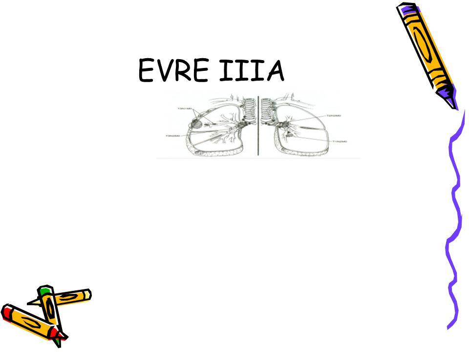 EVRE IIIA
