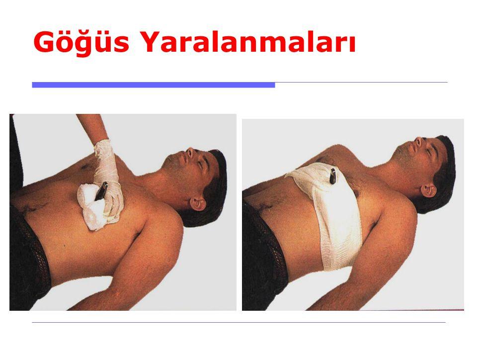 Göğüs Yaralanmaları