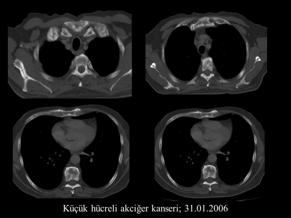 Küçük hücreli akciğer kanseri; 31.01.2006