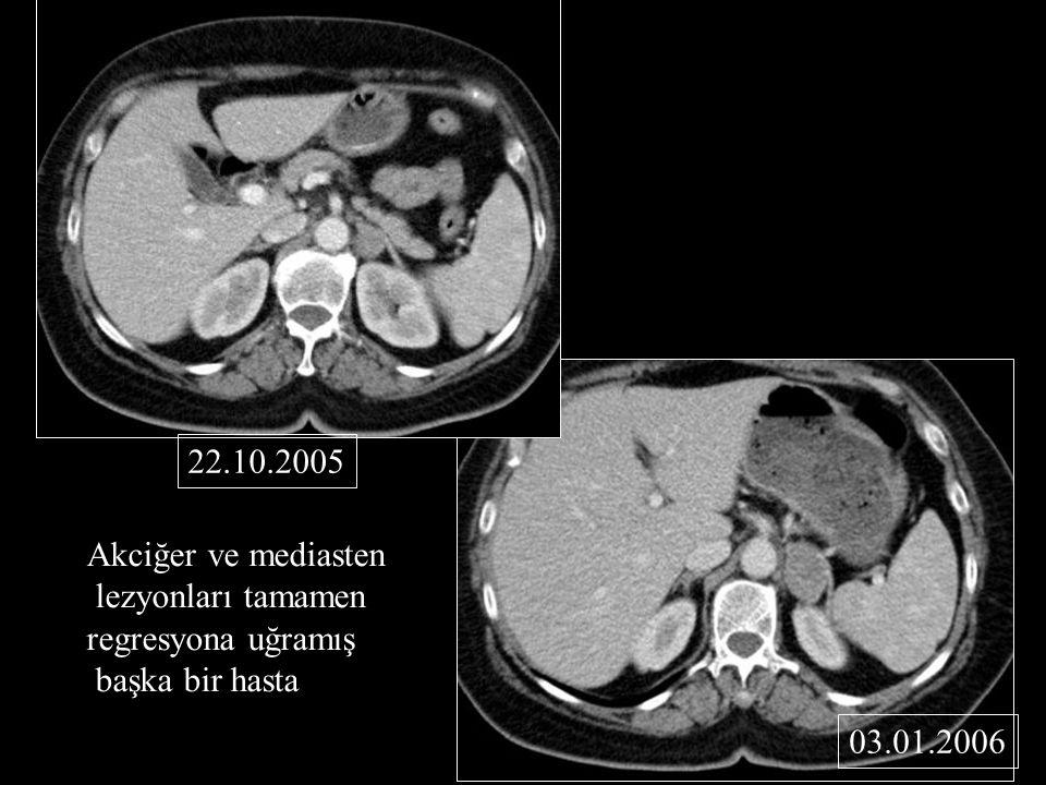 22.10.2005 Akciğer ve mediasten lezyonları tamamen regresyona uğramış başka bir hasta 03.01.2006