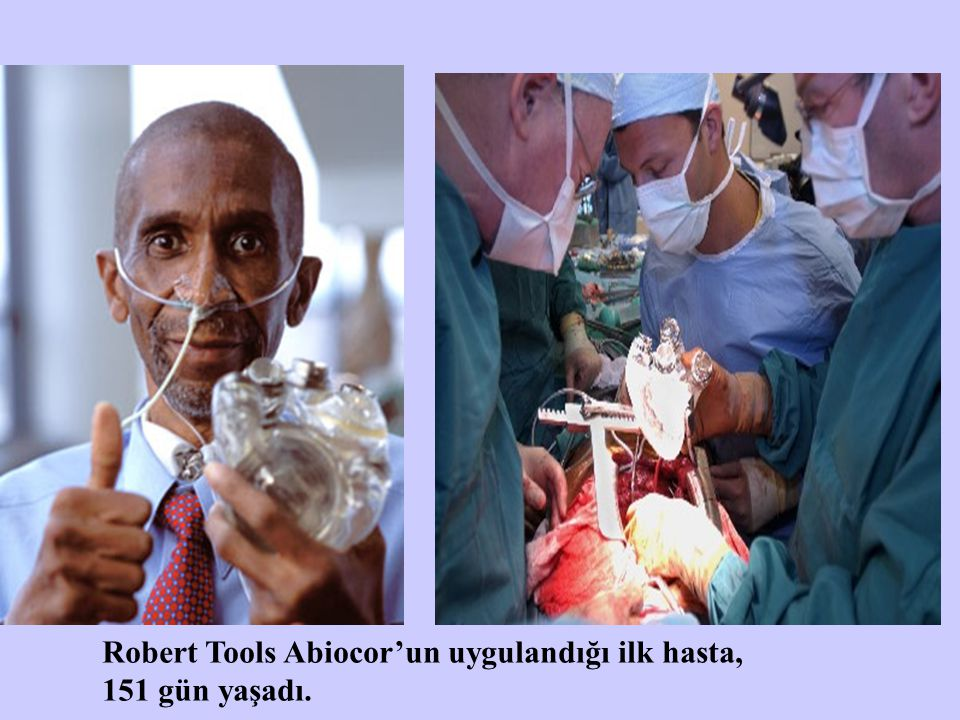 Robert Tools Abiocor'un uygulandığı ilk hasta,
