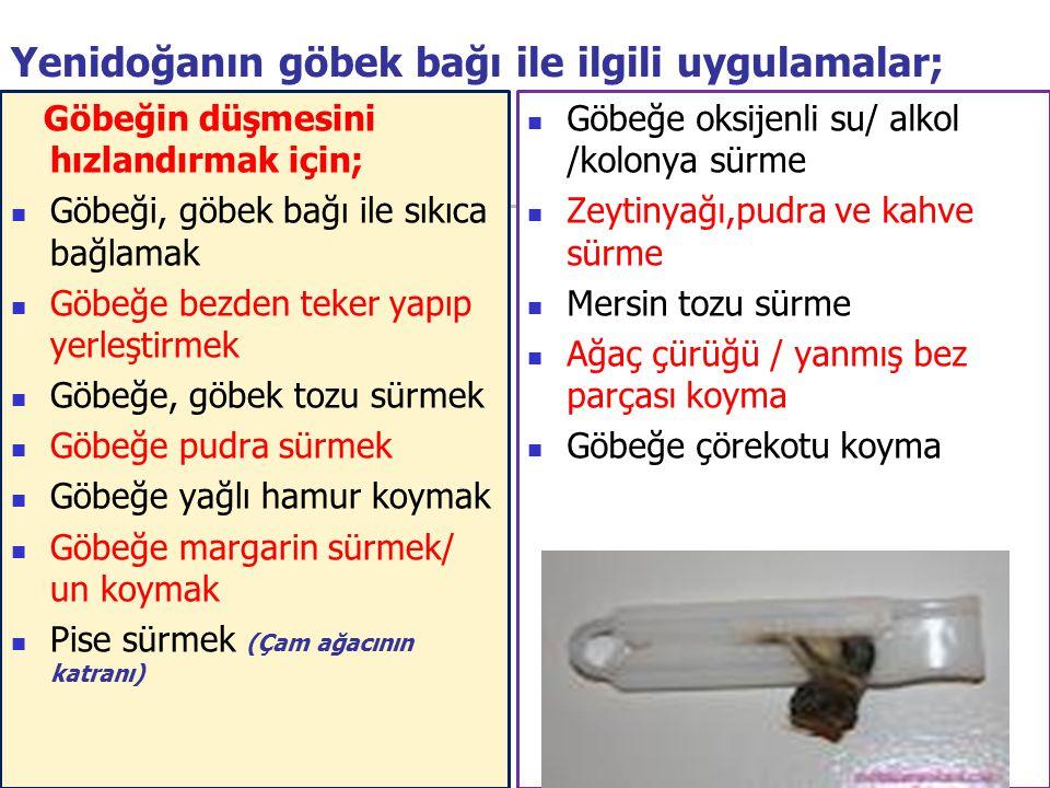 Yenidoğanın göbek bağı ile ilgili uygulamalar;
