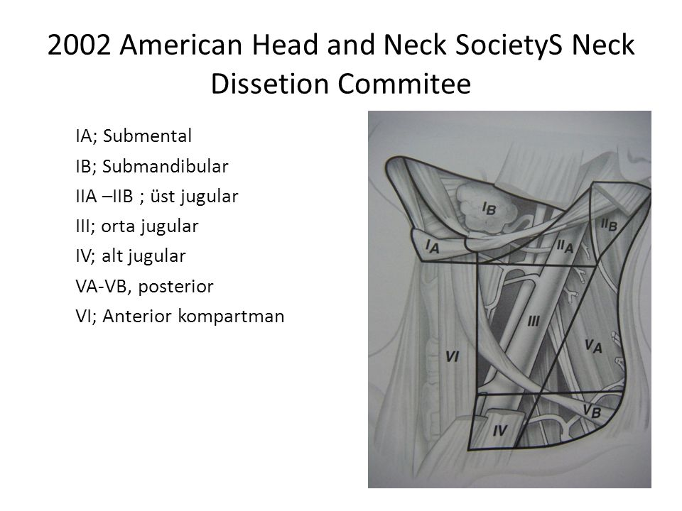 2002 American Head and Neck SocietyS Neck Dissetion Commitee